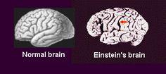 Einsteins brain