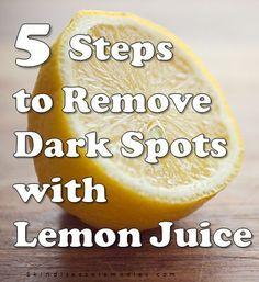 lemon jucie for dark spots