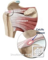 Calcific Tendonitis The pain can be extremely intense. It is one of the worst pains in the shoulder (the other being Frozen Shoulder ).
