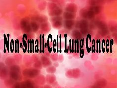 Lung cancer is one of the deadliest cancers in men and women worldwide. The most prevalent form of lung cancer is non-small cell lung cancer (NSCLC). Brain Healthy Foods, Positive Mental Attitude, Lung Cancer, Kidney Cancer, Holistic Approach, Lunges, The Cure, Blog, Healing
