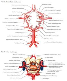 Circle of Willis - Inferior  dissected and in situ