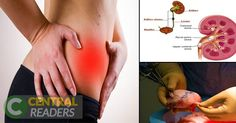 These Things Youre Doing Are Killing Your Kidneys. Stop Doing These Bad Habits Before Its Too Late  HealthyTipsAdvice http://ift.tt/2m0hOPC
