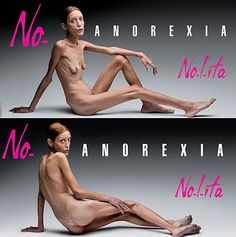 French model, Isabelle Caro, is the subject of these photographs taken by Oliviero Toscani. The ad was distributed in an effort to raise awareness about anorexia. Many saw this ad a crude for its nudity.