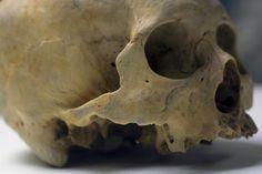 UB_Skull1_8.jpg