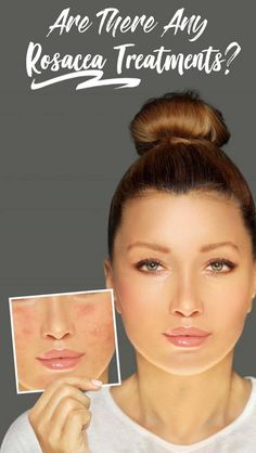 Rosacea (pronounced 'ROH-ZAY-sha') is a condition of the skin often referred to as adult acne (although it shouldn't be confused with acne) that causes red blemishes to form on the nose and cheek area. Skin Care Treatments, Acne Rosacea, Acne Skin, Beauty Routine Checklist, Beauty Routines, Diy Beauty, Beauty Care, Beauty Skin