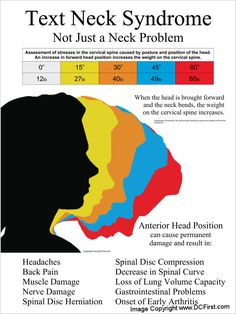Text Neck Syndrome, Not Just a Neck Problem. Chiropractic, Massage, Physical Therapy.