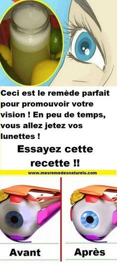 Ceci est le remède parfait pour promouvoir votre vision ! En peu de temps, vous allez jetez vos lunettes ! Essayez cette recette !!