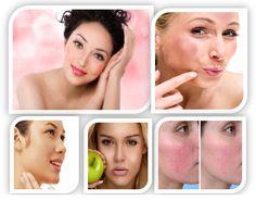 Best Skin Treatment For Rosacea Natural Treatments, Start Screen, Insurance Companies, Beauty Makeup Tips, Windows 8, Software Development, Seo, How To Make Money