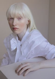 Human Reference, Art Reference, White Aesthetic, Aesthetic Girl, Modelo Albino, Pretty People, Beautiful People, Albino Model, Color Pencil Sketch