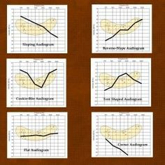The various types of audiograms (click to enlarge).