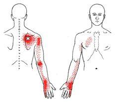 Serrato posterior superior   The Trigger Point & Referred Pain Guide