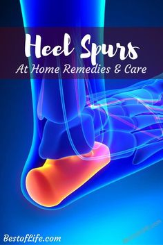 A heel spur can cause a tremendous amount of pain. Thankfully you can reduce the… A heel spur can cause a tremendous amount of pain. Thankfully you can reduce the pain of heel spurs with these at home remedies. Ankle Pain, Heel Pain, Foot Pain, Natural Headache Remedies, Natural Home Remedies, Holistic Remedies, Health Remedies, Heel Spur Relief, Heal Spurs