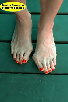 Correct your toes as fast as possible with these amazing bunion corrector platform sandals. The sandals work marvellously and they ensure that your toes regain back their shape Diy Makeup Foundation, Bunion Remedies, Get Rid Of Bunions, Listerine Foot Soak, Bunion Relief, Toe Ring Designs, Bunion Shoes, Amazing Life Hacks, Amazing Gadgets