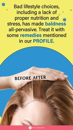 Health Facts, Health Tips, Beauty Care, Beauty Hacks, Thinning Hair Remedies, Health And Fitness Expo, Regrow Hair, Home Remedies For Hair, Hair Health