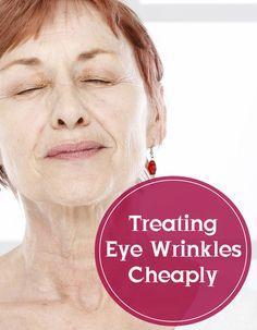 Treating Eye Wrinkles Cheaply