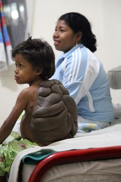 The boy who was born with a mole the size of his entire back or TMNT