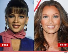 Vanessa Williams Plastic Surgery? Yes or no? www.DrWigoda.com #cosmeticsurgery #celebrity