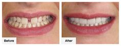 What Types of Problems Do Dental Veneers Fix?