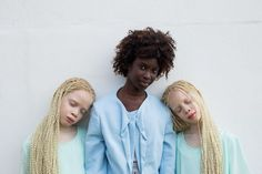 Twins albinism/and their sister