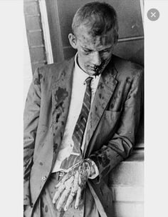 American pacifist James Zwerg after being beaten by a mob in Montgomery, Alabama in 1960 as part of the freedom riders. Zwerg volunteered to leave the bus first upon arriving in Montgomery, knowing he'd bear the brunt of the violent crowd's aggression. Jackson Mississippi, Black Art, Freedom Riders, Freedom Fighters, Non Plus Ultra, Civil Rights Movement, Rosa Parks, Interesting History, African American History