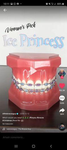 Dental Braces, Teeth Braces, Acrylic Nail Designs, Acrylic Nails, Braces Transformation, Cute Braces Colors, Braces Tips, Getting Braces, Girl Film