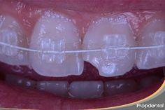 Caso clínico de brackets estéticos de ortodoncia realizados por la ortodoncista en Propdental. Los #bracketsdezafiro son del color del diente por lo que se disimulan durante el tratamiento de ortodoncia estética.