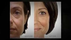 Jeunesse Before and Afters with Instantly Ageless and Luminesce Skincare Anti Aging Serum, Anti Aging Skin Care, Real People, Youth, Beautiful, Free Products, Skin Products, Beauty Products, Stem Cells
