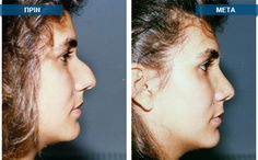 Find all the information for a successful rhinoplasty surgery by the distinguished doctor, Dr.Med.Pavlideli.