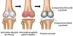 Artroplastia de genunchi descrisă de dr. Gabriel Stefănescu Knee Replacement Recovery, Knee Replacement Surgery, Joint Replacement, Spine Surgery, Knee Surgery, Knee Problem, Knee Osteoarthritis, Best Hospitals, Best Doctors