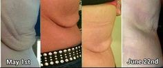 """This is simply the most amazing Before & After I have ever seen -all with our Nerium Firm!!!! Julie McClellan's story is incredible! She lost an astonishing 250 lbs. heres what she had to say after only 53 days with NeriumFirm!   """"Here is an updated picture of my back!! 8 days away from my scheduled skin removal surgery, now CANCELLED, thanks to NeriumFIRM!! 1st picture May 1st """"after"""" picture June 22 (Taken by my daughter). The sagging skin is the reality of massive (over 250lbs!) weight…"""