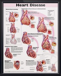 Heart Disease anatomy poster congestive heart failure, mitral valve prolapse and the effects of an aging heart are depicted. Cardiovascular chart for doctors and nurses.