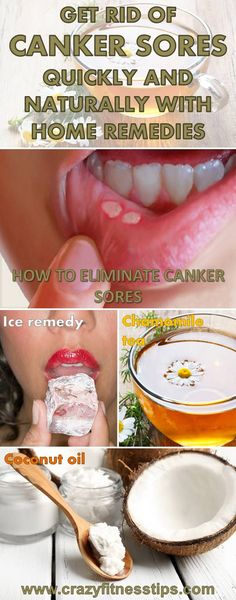 Get Rid of Canker Sores Quickly and Naturally With Home Remedies