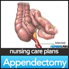 44 Best Nursing Care images | Nursing tips, Nursing school ...