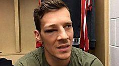 Dragic, KO por un impactante golpe en el ojo