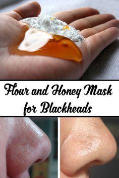 Flour and Honey Mask for Blackheads