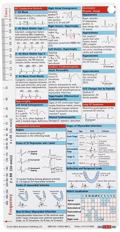ECG Pocketcard: Borm: 9781591034896: Books - Amazon.ca