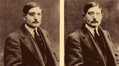 Wounded WWI soldier before and after eyewear mounted prosthetic mask. Image sourced from Smithsonian Magazine.
