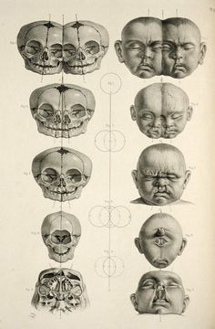 Dissecting a Human Head Through Anatomical Illustrations Macabre - Cabinet of CuriositiesMacabre - Cabinet of Curiosities Anatomy Head, Skull Anatomy, Anatomy Art, Anatomy Drawing, Human Anatomy, Animal Anatomy, Illustrations Médicales, Medical Illustrations, Medical Drawings