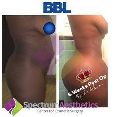 Spectrum Aesthetics, Boody Workout, Tummy Tucks, Surgery, Goals, Plastic, Future, Instagram Posts, Beauty