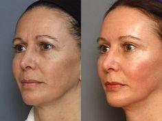 Retrouvez une peau ferme et lisse en 5 minutes avec ce masque liftant antirides !
