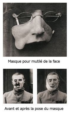 Early plastic surgery art – artists made masks for many men wounded in the face during WWI