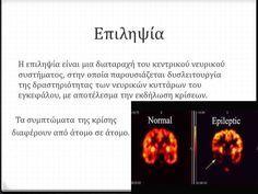 Ορισµοί Επιληψία-Ετυµολογία: από το ρήµα επιλαµβάνοµαι (παίρνω υπό τον έλεγχό µου). Επίληψις = οφείλεται στην είσ...