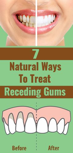 Treat Receding Gums Naturally Using These Methods - - Treat Receding Gums Naturally Using These Methods mouth support Health And Nutrition, Health And Wellness, Health Fitness, Nutrition Plans, Wellness Tips, Improve Mental Health, Oral Health, Gum Health, Natural Treatments