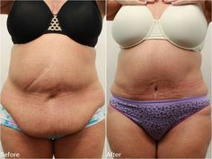 38 Best Abdominoplasty Surgery After Bariatric Sleeve Images Tummy