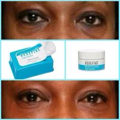Say goodbye to puffy, dark and tired eyes!!! Rodan+Fields DYNAMIC DUO of Multi-Function eye cream and REDEFINE eye wipes are arguably the BEST PRODUCTS! Message me for details...  https://sjanssen.myrandf.com