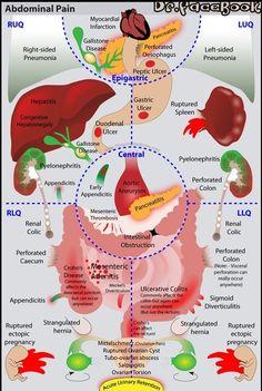 thenursingblog:  Charts & Figures: Know Your Abdominal Pains