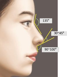 Cosmetic Fillers, Facial Fillers, Botox Fillers, Dermal Fillers, Lip Fillers, Skin Anatomy, Facial Anatomy, Plastic Surgery Quotes, Meneses