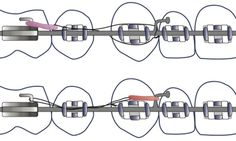 Evolución de las mecánicas de tratamiento y diseño de aparatología contemporánea en #ortodoncia #odontología