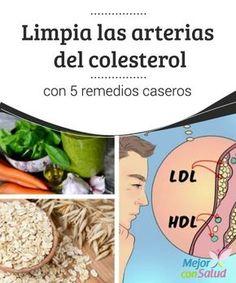 Limpia las #arterias del #colesterol con 5 remedios caseros ¿Acaban de comunicarte que tienes el colesterol alto y no te lo #esperabas? Está sucediendo más de lo que crees. En realidad, si lo piensas bien, no es tan extraño. Los alimentos #industrializados contienen muchas sustancias que lo provocan. #RemediosNaturales