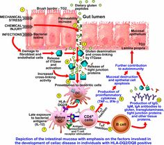 #Leaky_GUT: The correct medical term is actually intestinal permeability.
